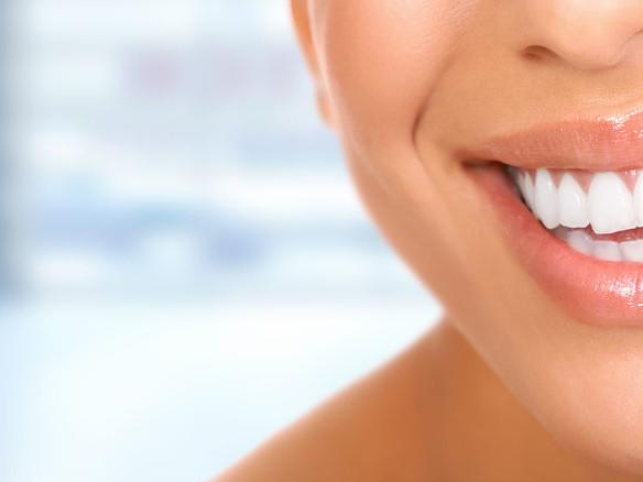 Mutuelle dentaire : Remboursement dentaire jusqu'à 400%