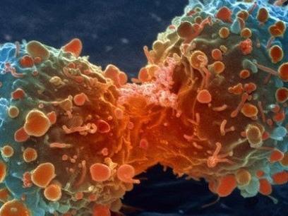 Cancer: les copies de biomédicaments prêtes à (un peu) soulager les systèmes de santé
