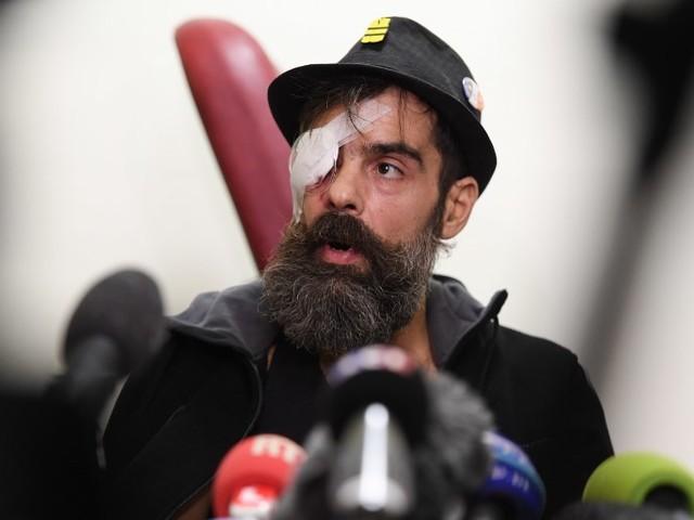 Le gilet jaune Jérôme Rodrigues aurait été blessé par une grenade, peut-être mal utilisée