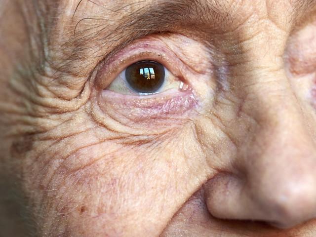 Oui, notre comportement peut éviter des souffrances inutiles aux personnes atteintes de la maladie d'Alzheimer