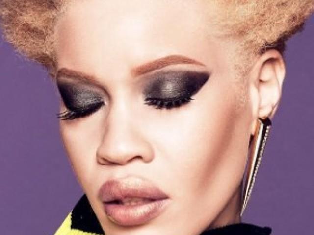 Diandra Forrest, première mannequin albinos à devenir égérie d'une grande marque de beauté