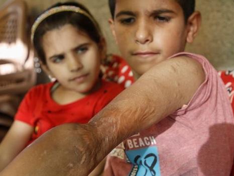 "Yamin, le petit ""Iron Man"" de Gaza"