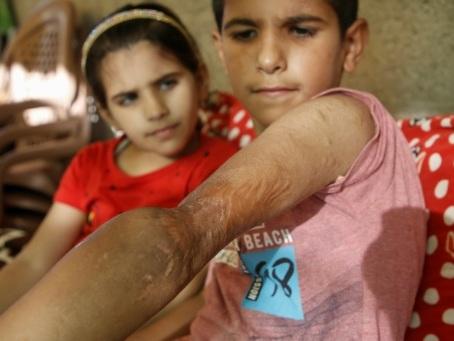 """Un journaliste a retrouvé Yamin, le petit """"Iron Man"""" de Gaza: en 2014, gravement brûlé, il avait survécu, mais pas ses parents"""