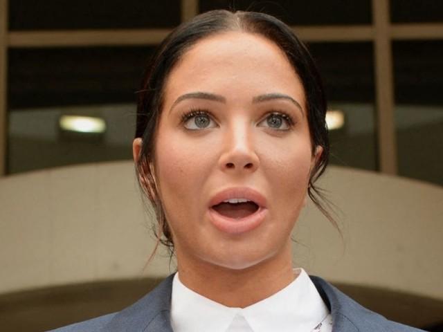 """Tulisa défigurée par la chirurgie : """"J'ai fait une réaction allergique..."""""""