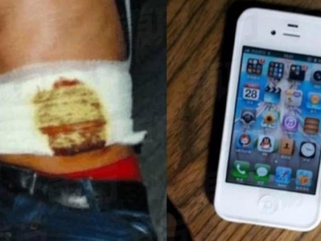 Pour s'acheter un iPhone, cet étudiant a vraiment vendu son rein !