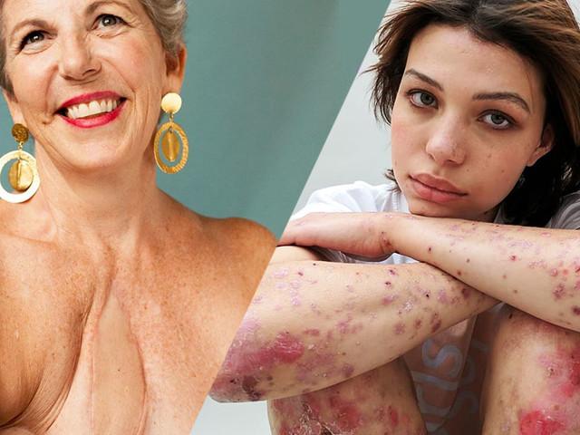 9 femmes marquées par de terribles cicatrices qui nous donnent une belle leçon de vie