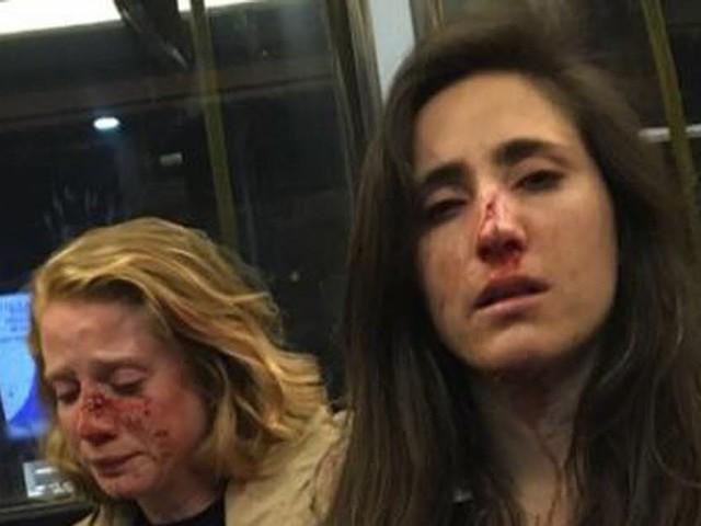 Agression d'un couple de femmes à Londres : quatre adolescents inculpés
