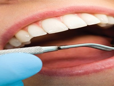 Mutuelle dentaire sans plafond – Prothèses et implants