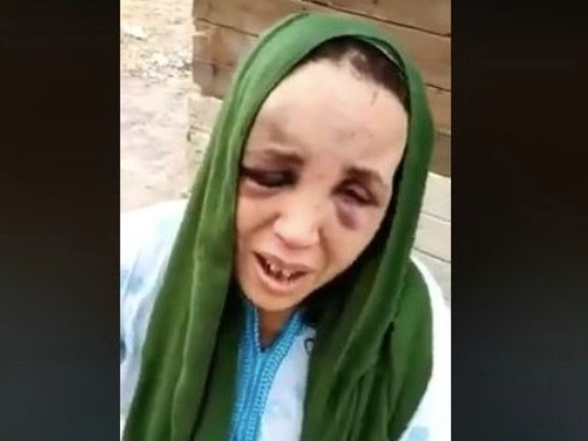 Victime de violences conjugales, cette Marocaine raconte son calvaire