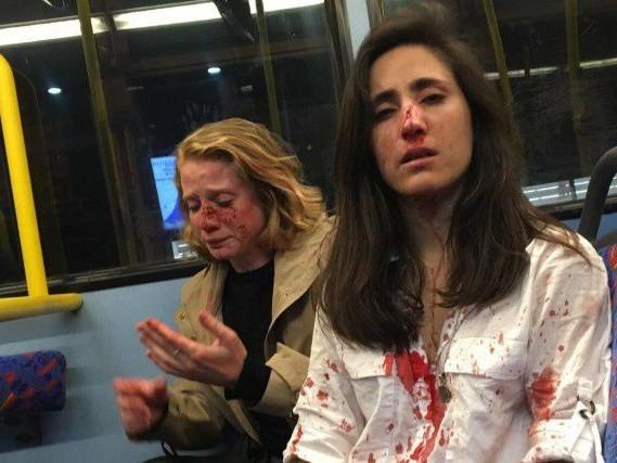 Couple de femmes agressé à Londres: les suspects libérés sous caution
