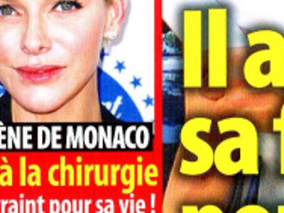 Charlène de Monaco, ravage de chirurgie esthétique, terrible angoisse du prince Albert (photo)