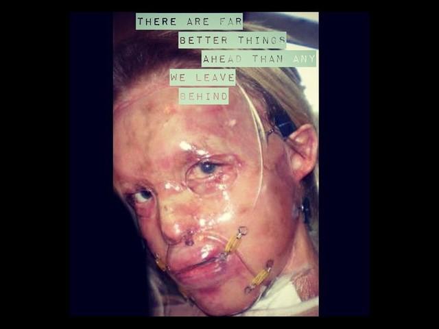 Katie Piper : Libération de l'homme qui l'avait défigurée à l'acide