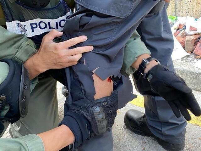 EN DIRECT - Hong Kong : un policier blessé à la jambe par une flèche tirée par un manifestant