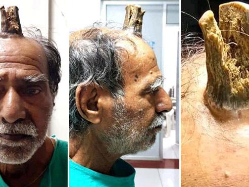 """Une énorme corne poussait sur sa tête: """"l'homme licorne"""" a été libéré de son excroissance"""