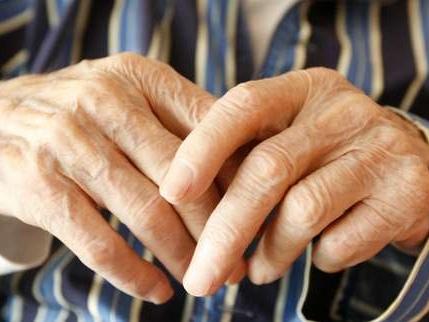 Alzheimer: 1million demalades, 2millions d'aidants, 20milliards d'euros de coûts… et 0traitement
