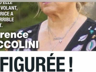 Laurence Boccolini défigurée, dramatique accident, terrifiante confidence