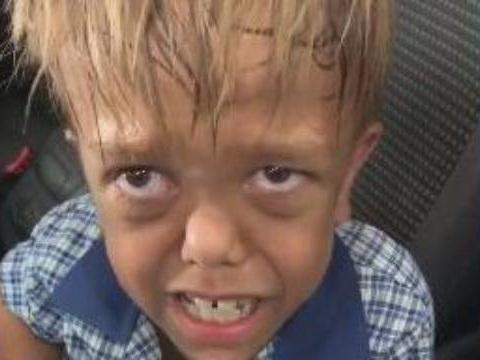 «Donne-moi un couteau, je veux me suicider»… La vidéo de Quaden, victime de harcèlement scolaire, bouleverse les internautes