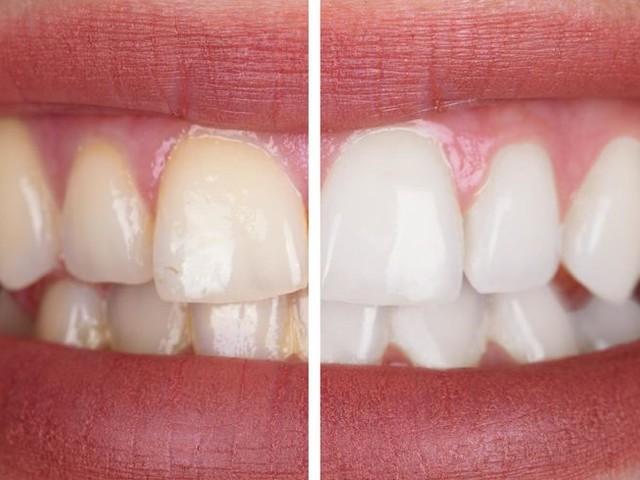 Kit de blanchiment dentaire : notre sélection