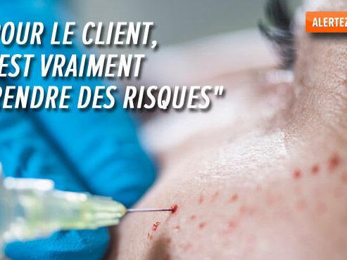 """Traitement """"VAMPIRE LIFT"""" de rajeunissement de la peau en Belgique: il nécessite un médecin, ce qui ne serait pas toujours le cas"""