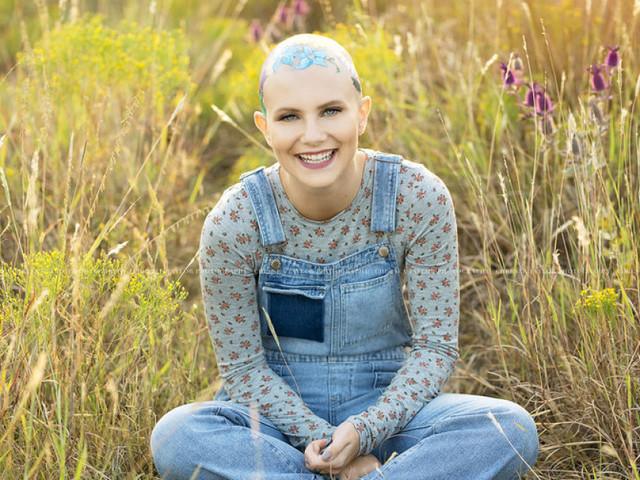 Les magnifiques photos de cette adolescente chauve atteinte d'alopécie