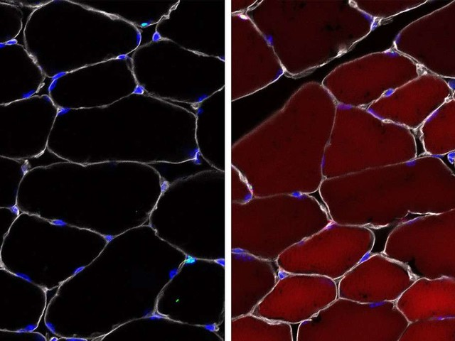 Des cellules souches génétiquement modifiées in vivo pour la première fois