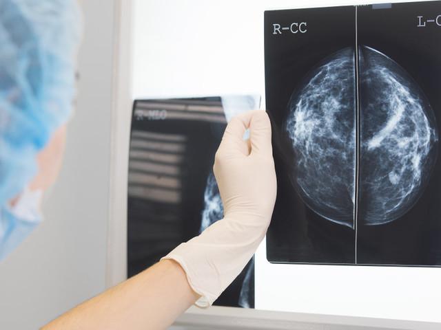 """Si une mammographie """"normale"""" ne vous met pas à l'abri d'un vrai cancer, une anomalie détectée ne signifie pas une vraie maladie"""