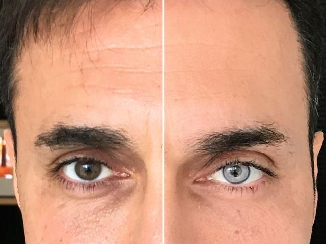 Docteur, changez la couleur de mes yeux