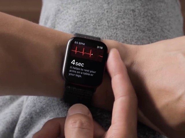 La Apple Watch et l'iPhone utilisés pour le rétablissement des patients