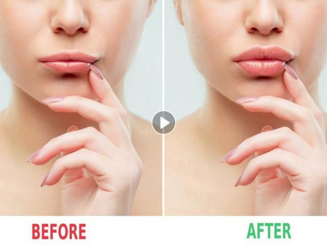 """""""Le lip glue challenge"""", le nouveau défi beauté des réseaux sociaux qui inquiète les dermatologues"""