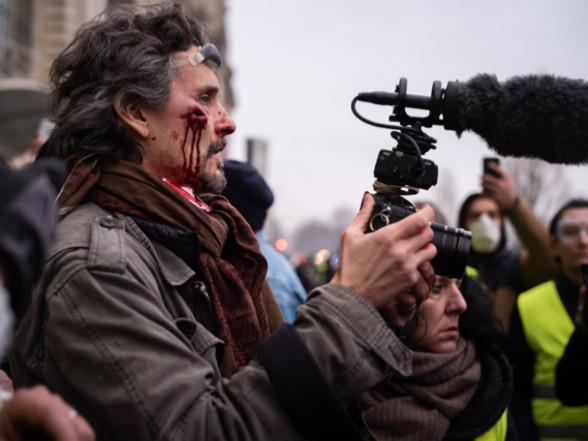 Le réalisateur Florent Marcie blessé par un tir de flashball