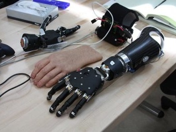 Artificial limbs to be lighter in weight, increased longevity