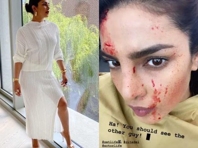 क्या शूटिंग के दौरान प्रियंका चोपड़ा के चेहरे पर लगी चोट? शेयर की ये तस्वीर