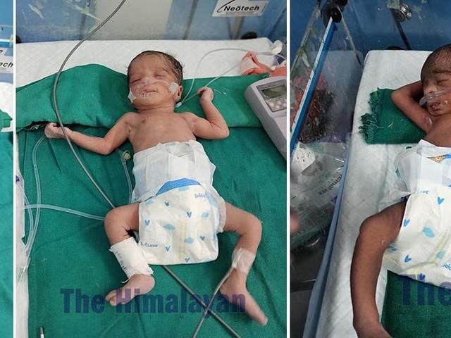 Syangja woman gives birth to quadruplets at Manipal Teaching Hospital