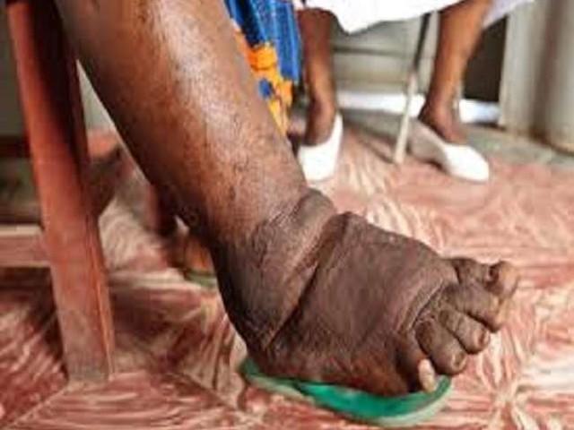छत्तीसगढ़ में हर मरीज को खिलाएंगे फाइलरिया की दवा, शुरू होगा सामूहिक दवा सेवन कार्यक्रम