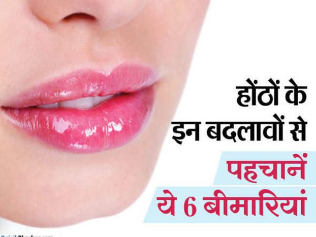 होंठों के इन 6 संकेतों से पहचानिए, कौन-सी बीमारी है आपको