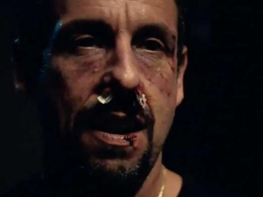 Uncut Gems: Adam Sandler col volto tumefatto nel teaser del thriller