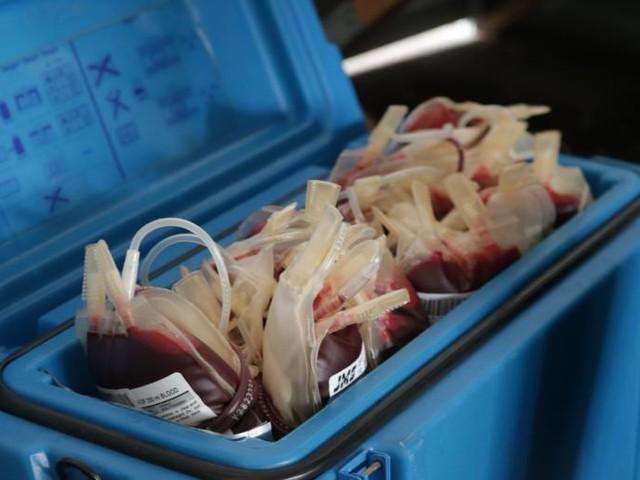 Muore a Monza per una trasfusione sbagliata: il sangue sbagliato per un caso di omonimia
