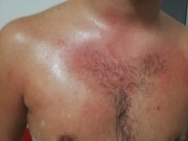 Salerno, aggredito e picchiato da un genitore un giovane calciatore under 17