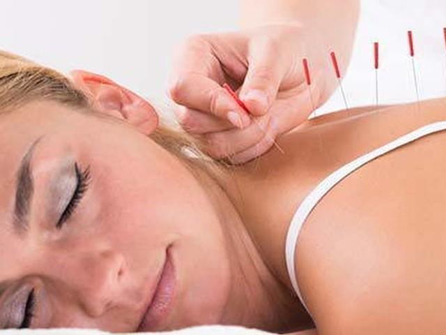 Agopuntura per il benessere fisico e psicologico