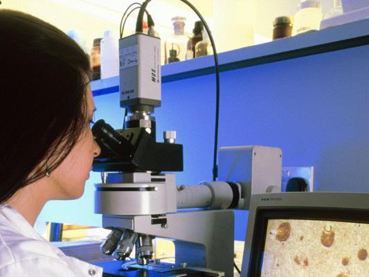 Scoperte nuove possibili cause della sindrome che causa le cisti ovariche