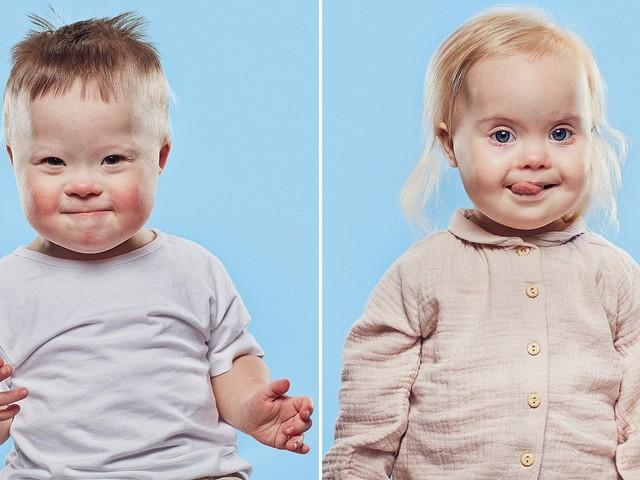 """Bambini con la sindrome di down in tv, sono protagonisti di uno spot: """"Non temete la disabilità"""""""