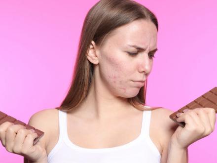 Dolciumi, bibite e acne: anche la cattiva alimentazione è associata a un aumento del rischio di problemi dermatologici