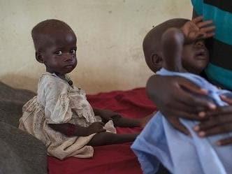 Papa: manca volontà politica per sradicare fame nel mondo