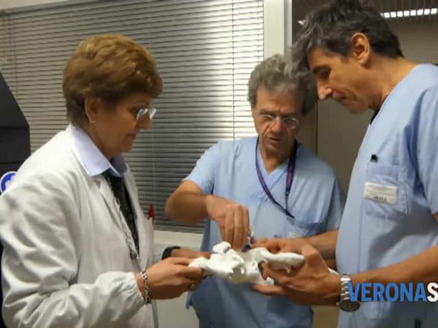 Stampante 3D all'ospedale di Negrar per preparare gli interventi chirurgici
