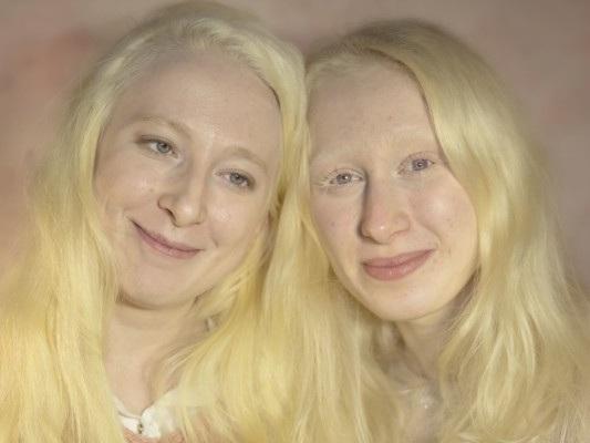 Cosa possiamo fare per combattere le discriminazioni contro gli albini