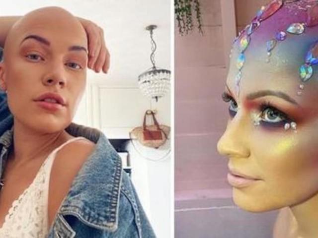 La giovane soffre di alopecia da quando aveva 17 anni ed è stata presa in giro, ma la sua vita è cambiata