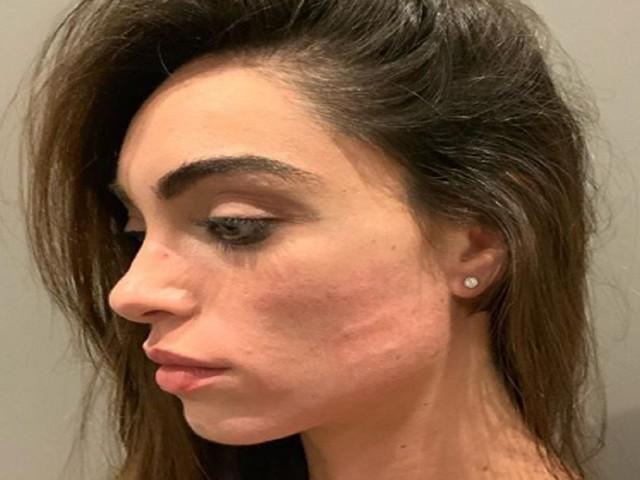 """Verissimo, Lorella Boccia e l'aggressione: """"Ho avuto paura di perdere mio marito"""""""