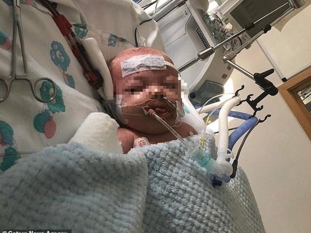 """""""Mio figlio di 11 mesi ha avuto la sepsi, la sua gamba mi è rimasta tra le mani"""": il commovente racconto di una mamma"""