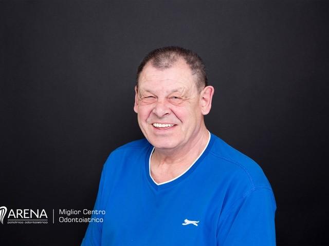 Cambiamenti sui denti legati al invecchiamento
