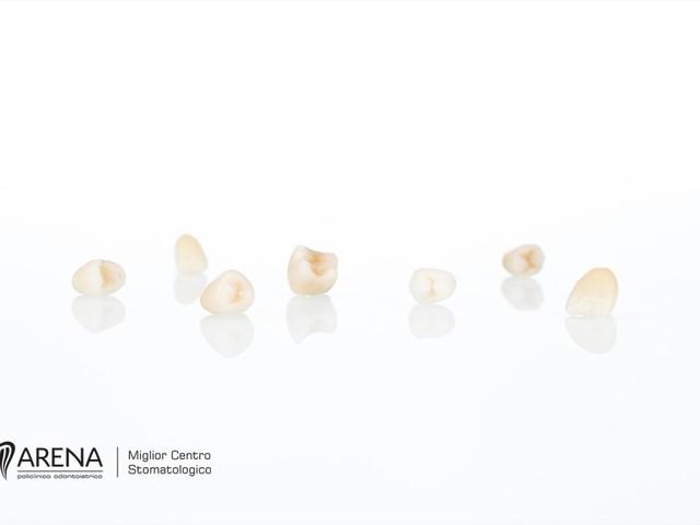 Capsule dentali – Rendere i denti nuovamente belli e funzionali è possibile